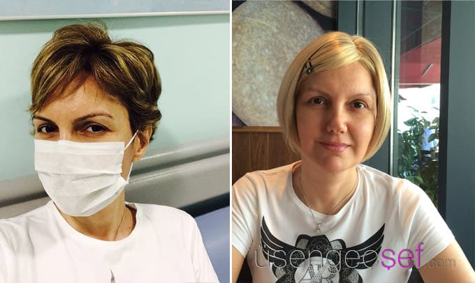 usengec-sef-meme-kanseri-kemoterapi-sac-dokulmesi